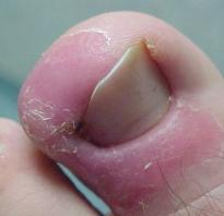 Воспалился большой палец на ноге у ногтя – гиперемия пальца