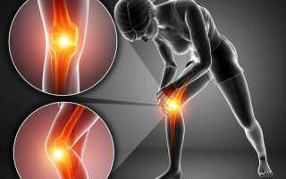 Гиалуроновая кислота для суставов в таблетках