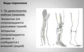 Трещина в кости на ноге симптомы: как отличить перелом от ушиба?