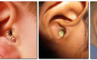 Из уха выделяется жидкость желтого цвета, выделения из ушей у взрослых