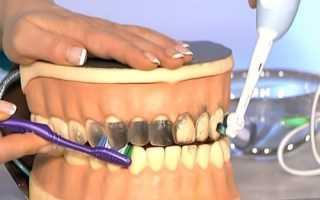 Вред электрических зубных щеток