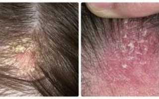 Как лечить жирную себорею кожи головы?