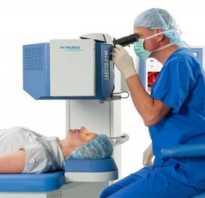 Со скольки лет делают лазерную коррекцию зрения