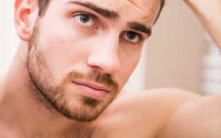 Выпадают волосы у мужчины что делать: начальная стадия облысения