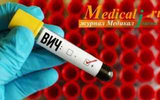 ВИЧ и СПИД в чем разница симптомы