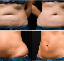 Можно ли убрать живот с помощью массажа, самомассаж для похудения