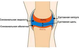 Жидкость в коленном суставе, что делать?