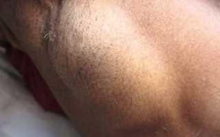 Болит под правой подмышкой у женщин, болезненная припухлость под мышкой