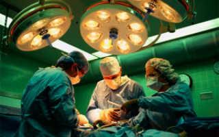 Что такое свищ и как его лечить – лигатурный инфильтрат