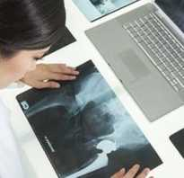 УЗИ или рентген коленного сустава что лучше?
