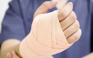 Сильный ушиб запястья: лучезапястный сустав травма