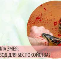 Во сне змея укусила за руку: к чему снятся укусы змей