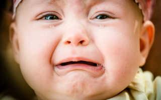 Когда у детей появляются слезы при плаче: слезные каналы у новорожденных когда открываются