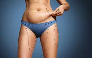 Как убрать подкожный жир на животе?