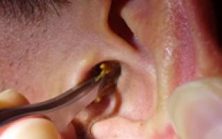 Признаки пробки в ухе у взрослого: кипит сера в ушах, что делать?