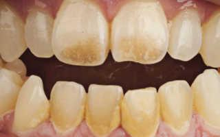 Как убрать черный налет на зубах, чистка зубов от налета в домашних условиях