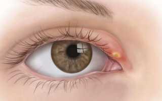 Первая помощь при ячмене на глазу, как лечить печечмень?