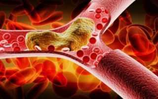 Как убрать плохой холестерин из организма?