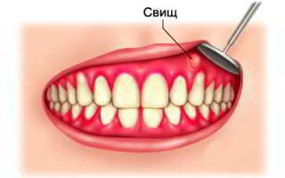Свищ в зубе что такое, на десне