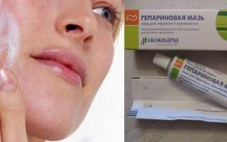 Гепариновая мазь при куперозе на лице отзывы