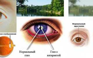 Глазные капли от глаукомы и глазного давления